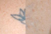 Entfernung von Tätowierungen mit Laser