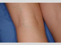 CYN varix kezelés