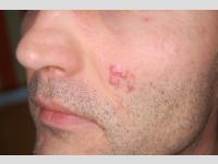 Pattanásos bőr és hegesedés kezelése