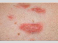 Behandlung von Akne