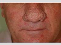 Laser-Behandlung von Rhinophyma