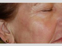 MIXTO Laserbehandlung auf dem älteren Haut.