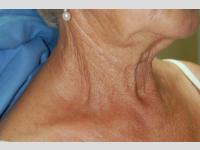 Behandlung von Altersflecken mit CO2-Laser