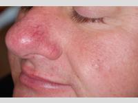 Behandlung von erweiterten Blutgefässen im Gesicht