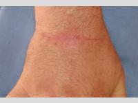 Behandlung von chirurgischen Narben und Warzen in Narben mit Farbstofflaser