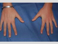 Behandlung mit Farbstofflaser von vielfachigen Warzen im Handrücken