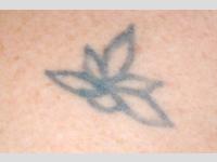 tetoválás lézeres eltávolítása -előtte