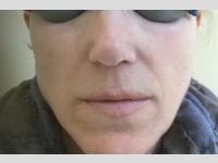 Fotona 4D ® kezelés után