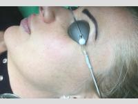 TwinLight TM arcfiatalítás kezelés után