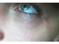 Periorbitalis értágulat kezelés után