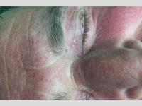 Behandlung von Xanthelasma