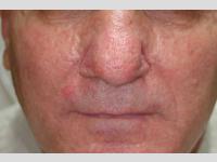 Rhinophyma CO2 lézeres kezelés után, gyógyulást követően