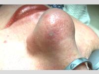 Angióma kezelés után