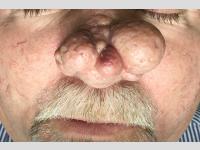 Rhynophyma kezelés előtt