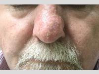 Rhynophyma kezelés után